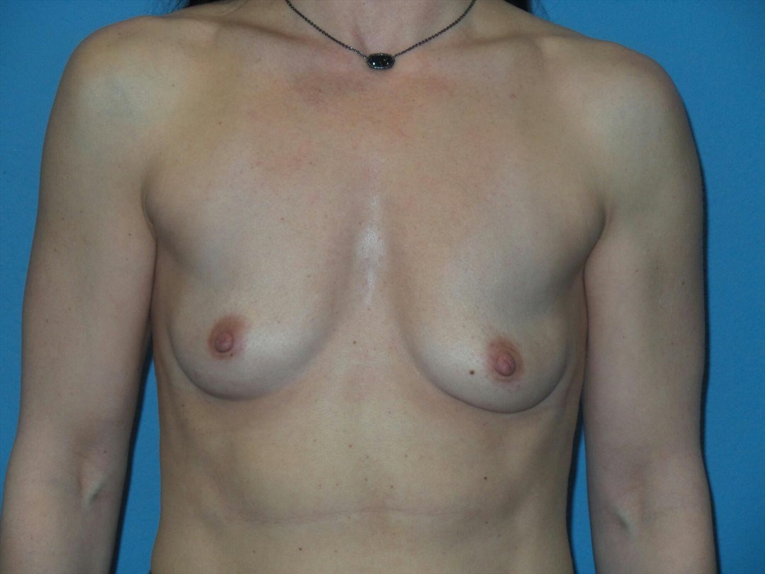 Breast augmentation, front Before