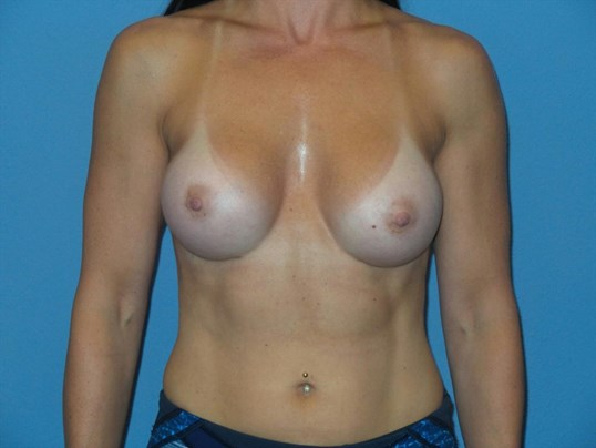 Breast augmentation, front After
