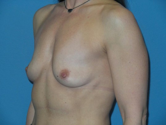 Breast augmentation, oblique Before