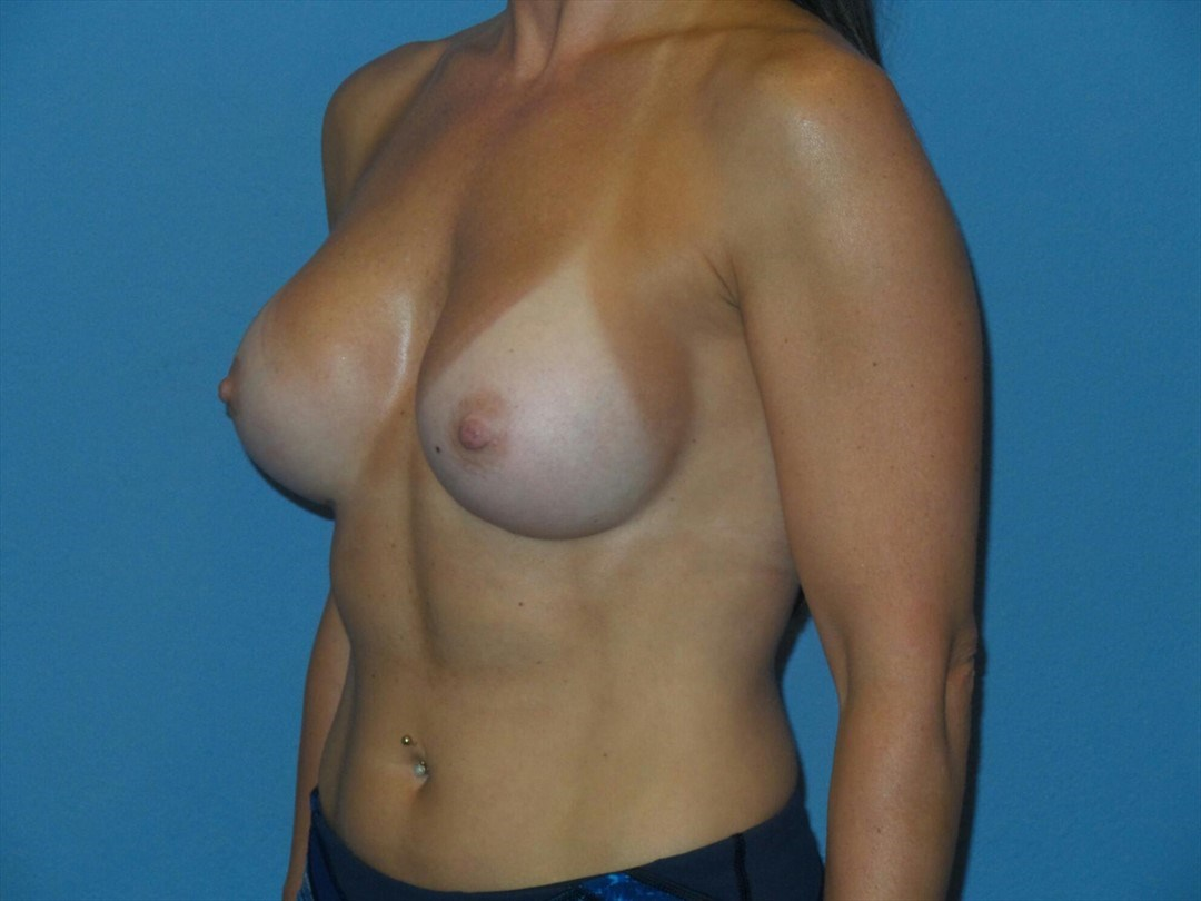 Breast augmentation, oblique After