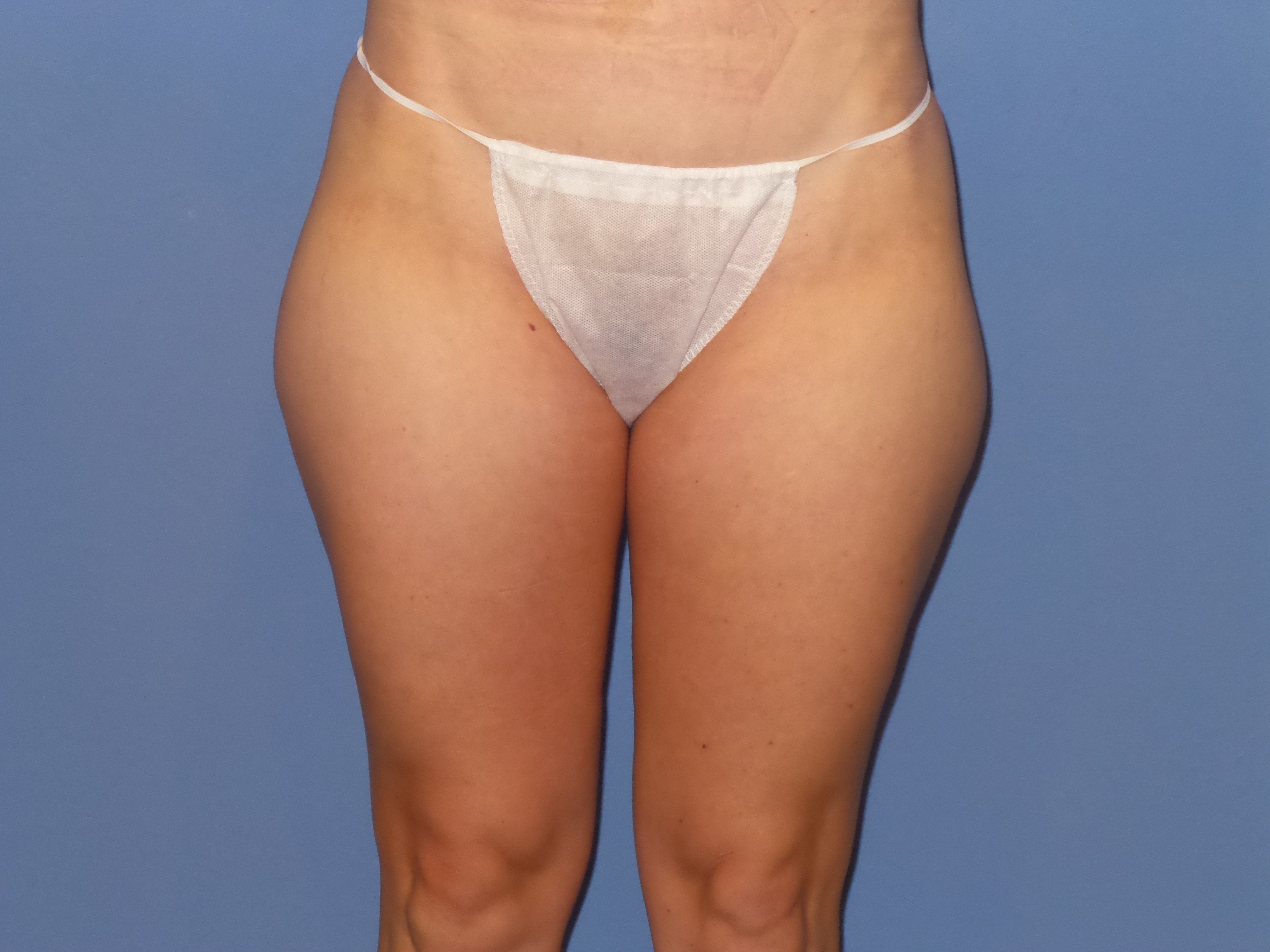 BodyTite Liposuction results Before