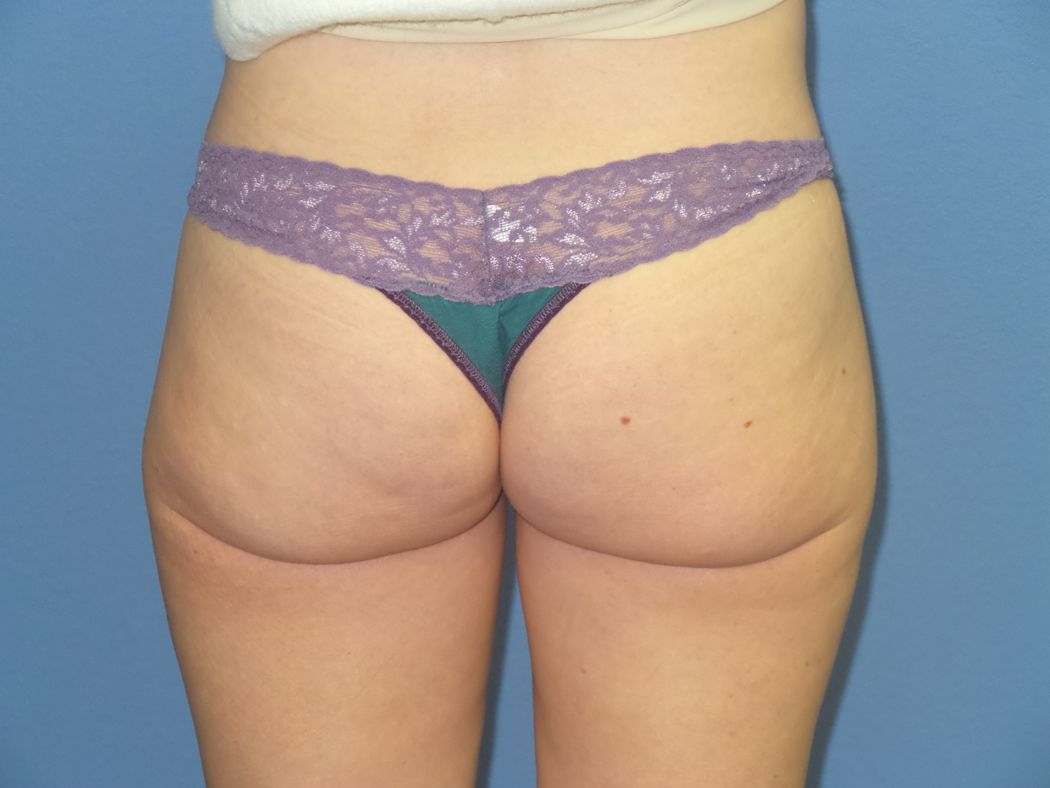 BodyTite Liposuction results After