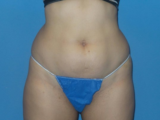 BodyTite 360 lipo results Before