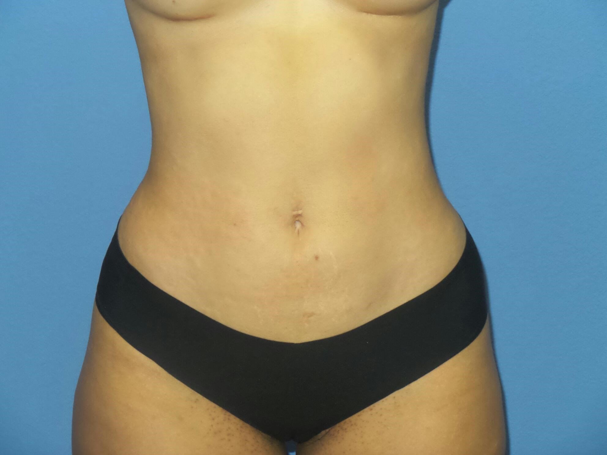 BodyTite 360 lipo results After