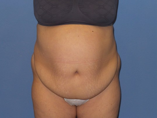 Tummy tuck results, front Before