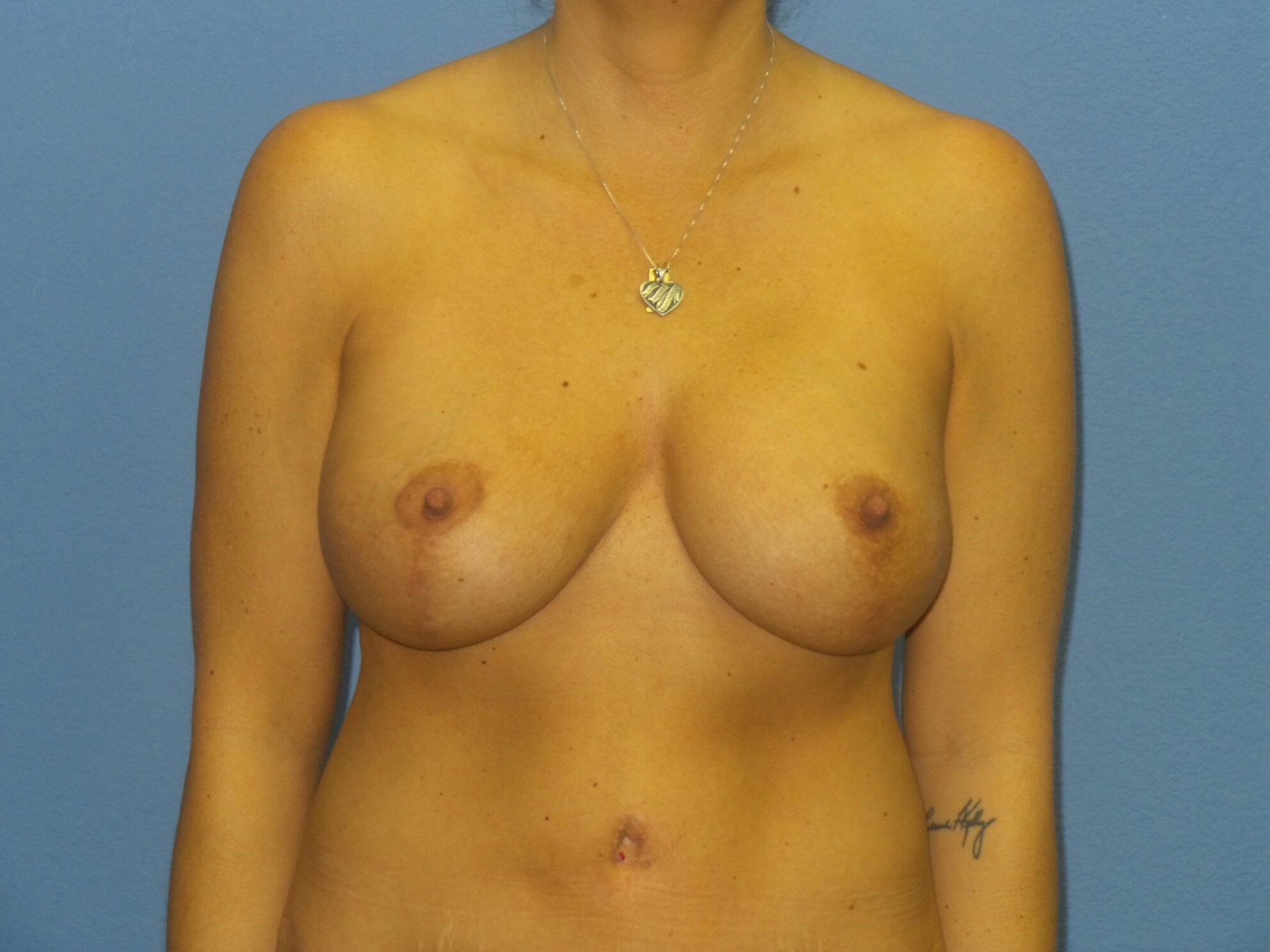 Breast augmentation/lift After