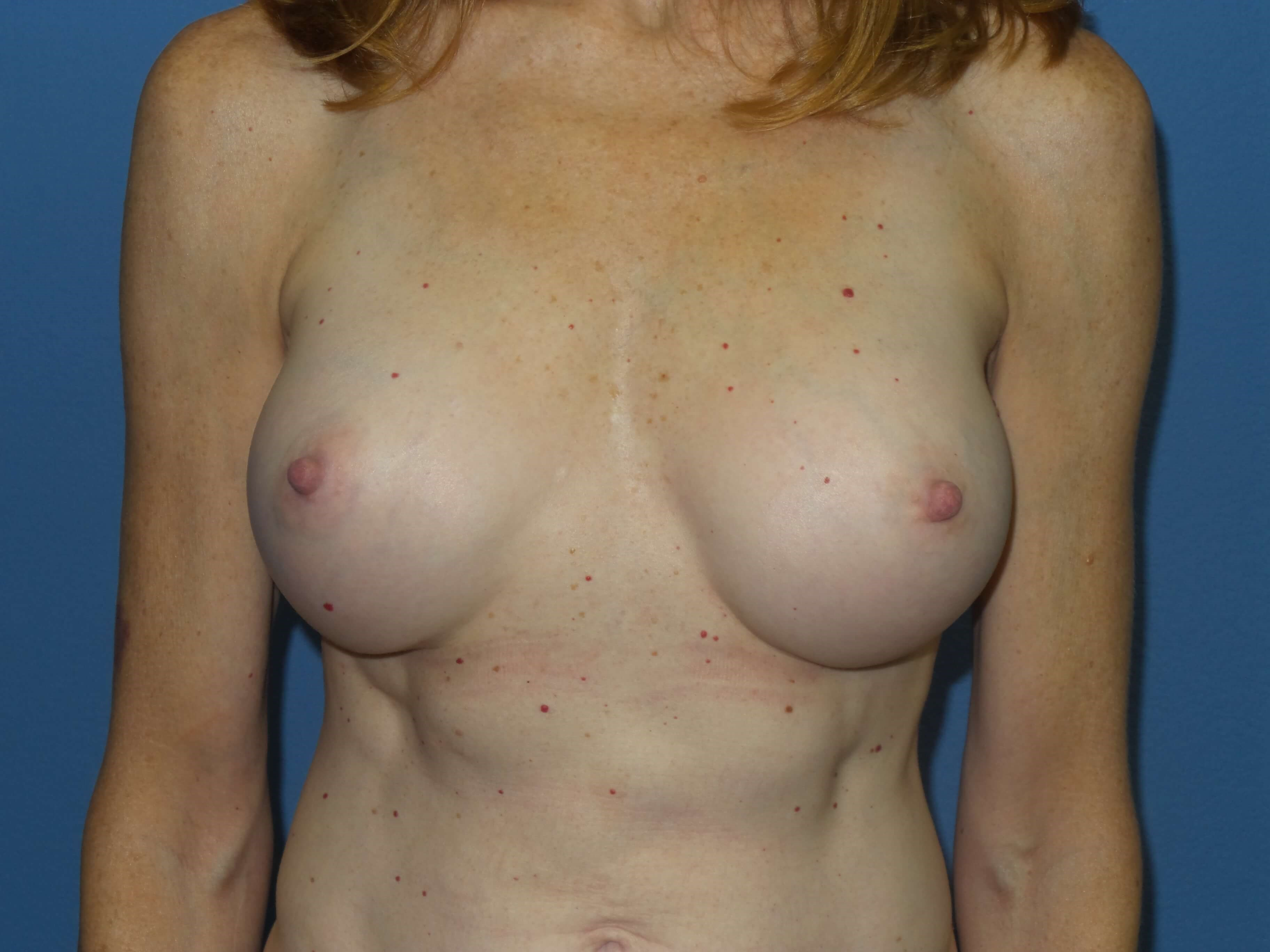 Breast augmentation results After