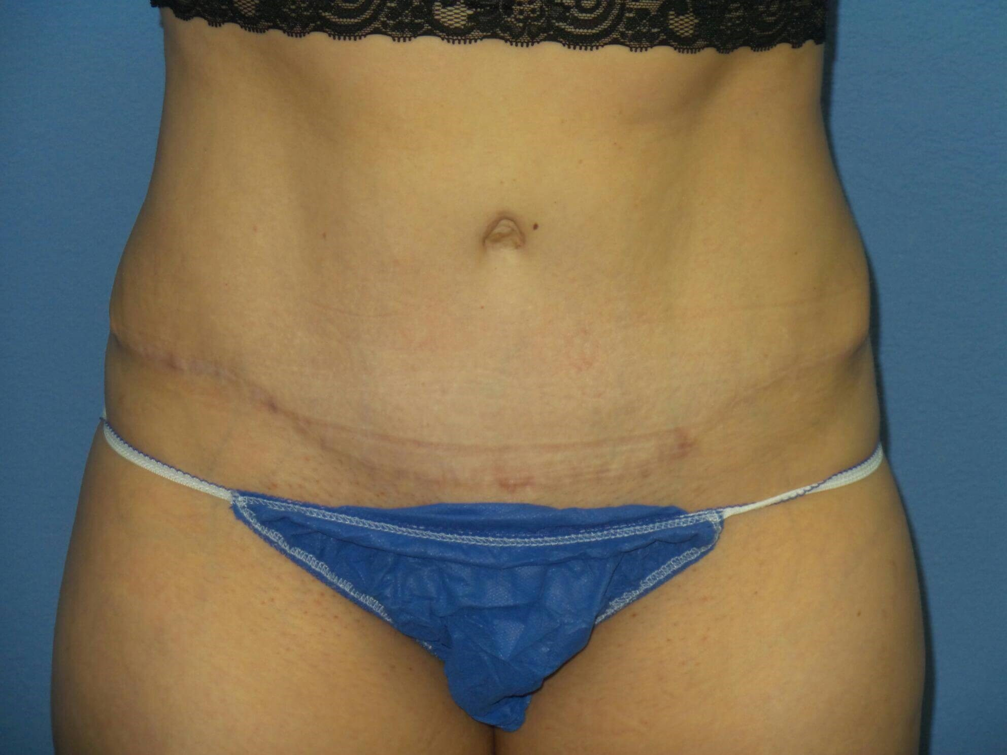 Tummy tuck results, front After