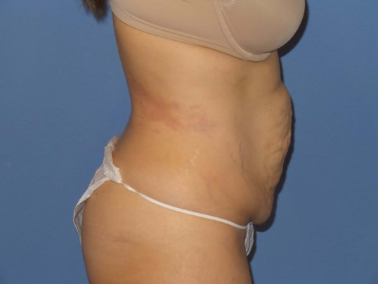 Tummy tuck results, side Before