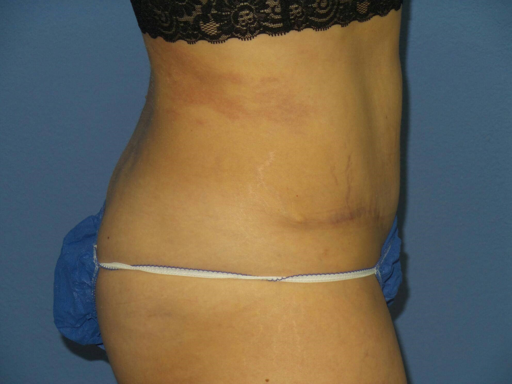 Tummy tuck results, side After