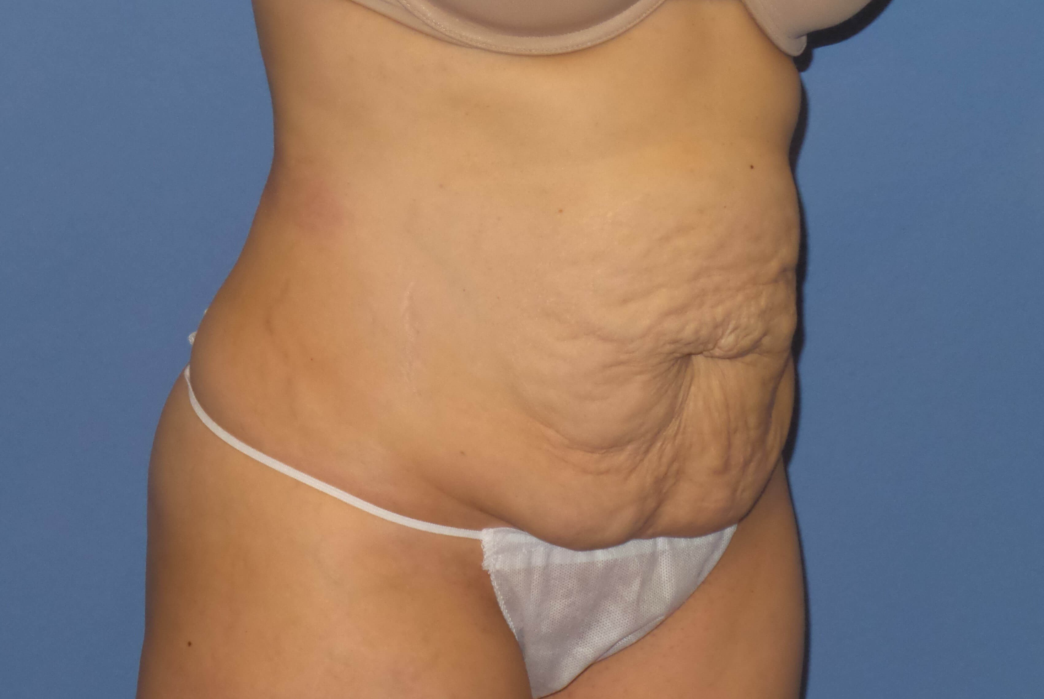 Tummy tuck results, oblique Before