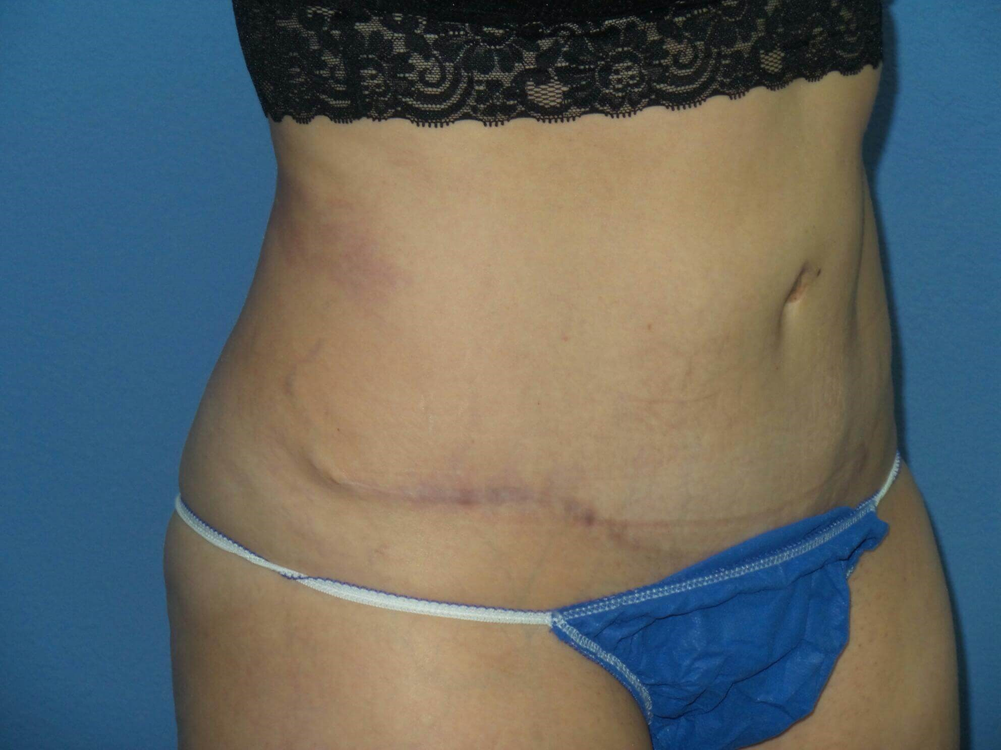 Tummy tuck results, oblique After