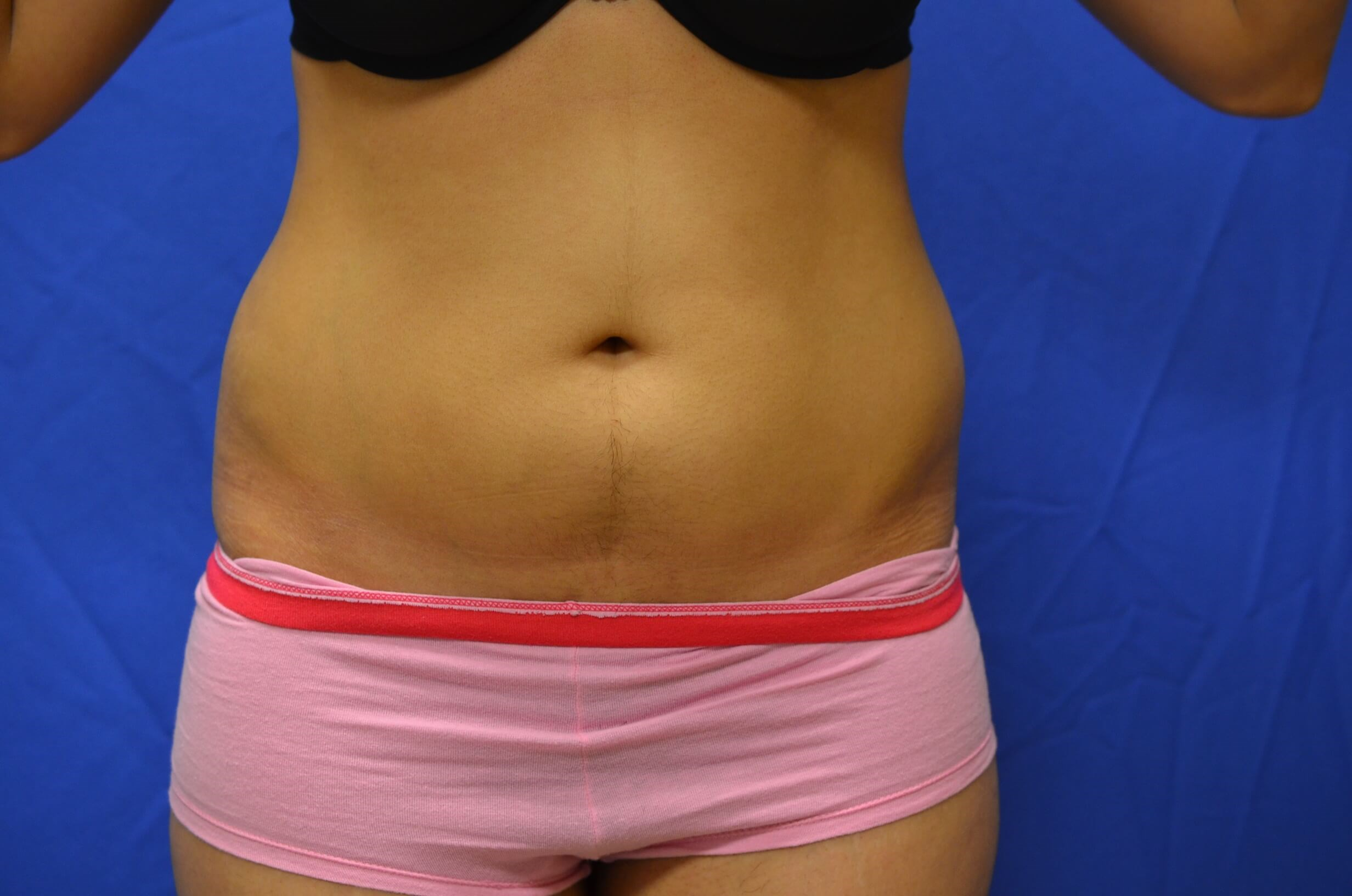 SmartLipo abdomen results Before
