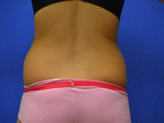 SmartLipo flanks results Before