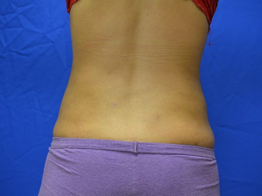 SmartLipo flanks results After
