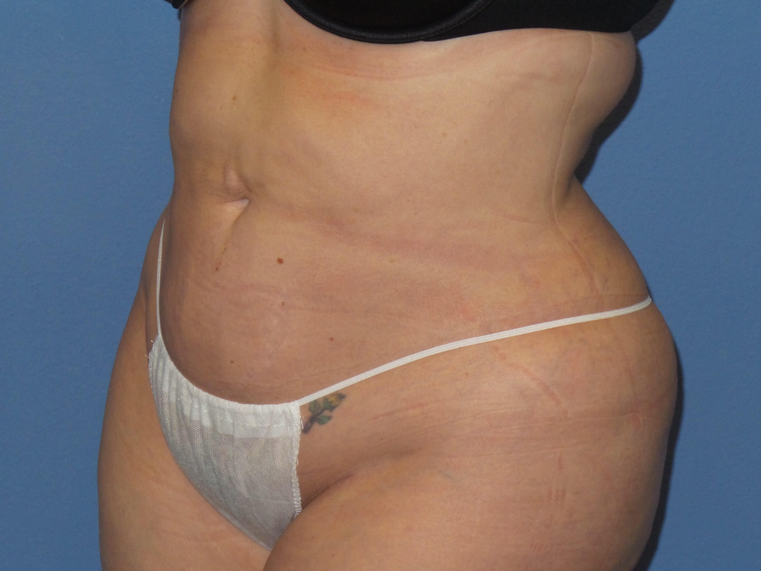 Liposuction 360 results After