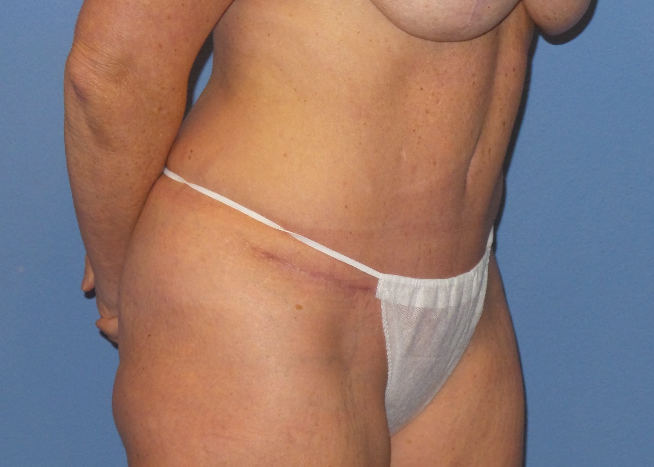 Tummy tuck oblique results After
