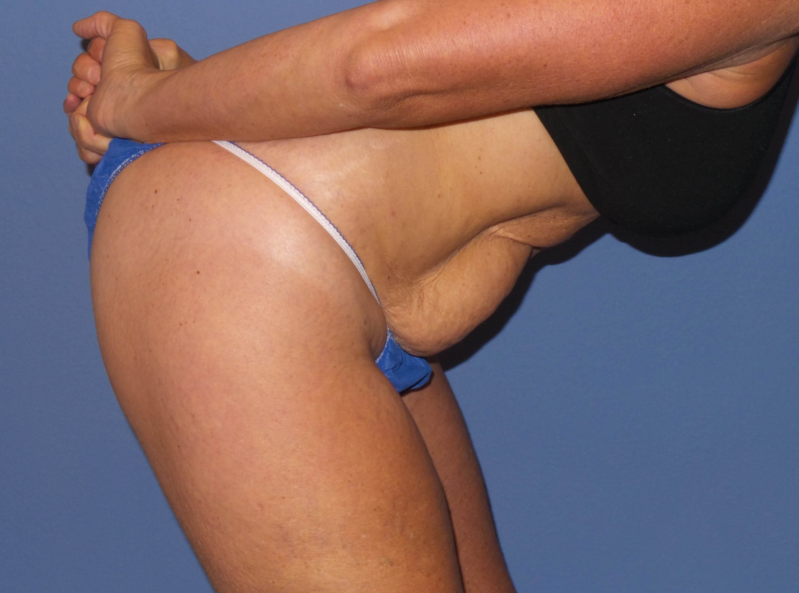 Tummy tuck dive results Before