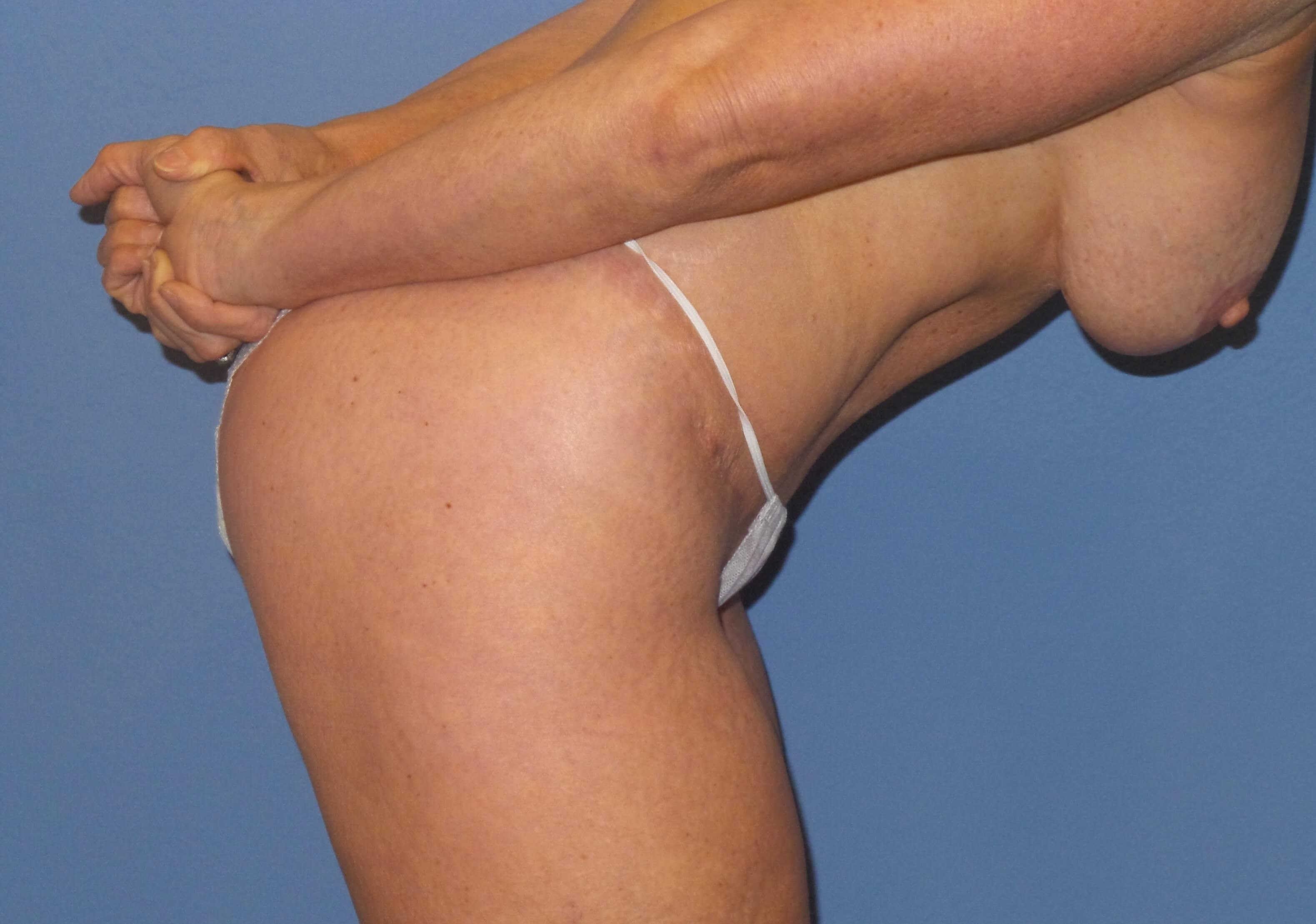Tummy tuck dive results After