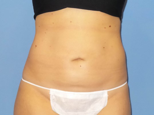 SmartLipo abdomen results After
