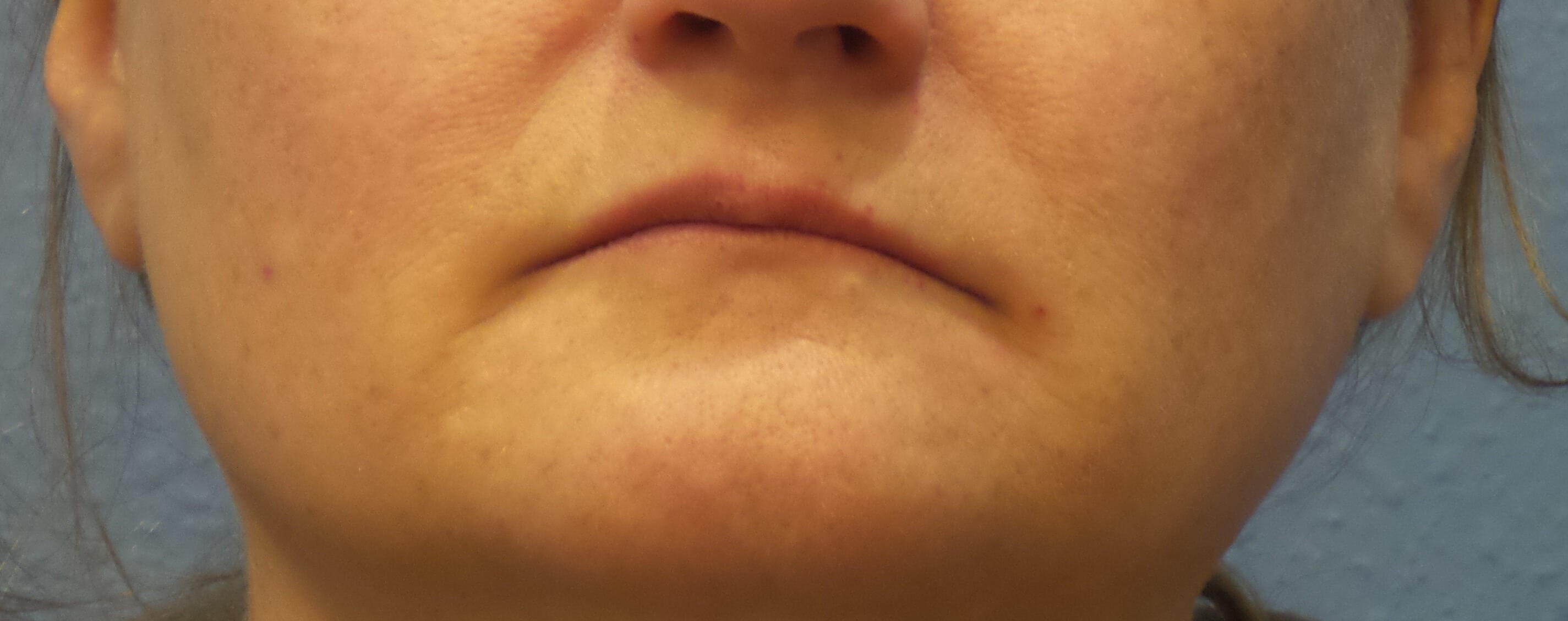 Lip and mouth filler results Before