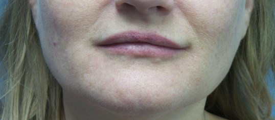 Lip and mouth filler results After