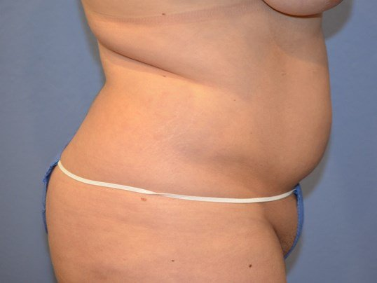 Liposuction 360 results Before