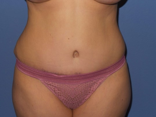 Tummy tuck results After