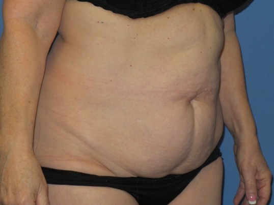 Tummy tuck results Before