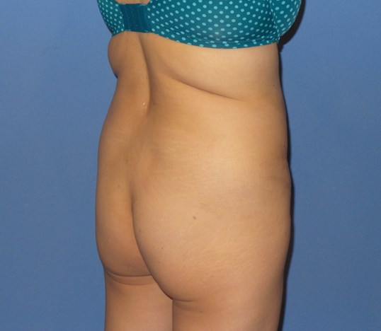 Brazilian Butt Lift Results Before