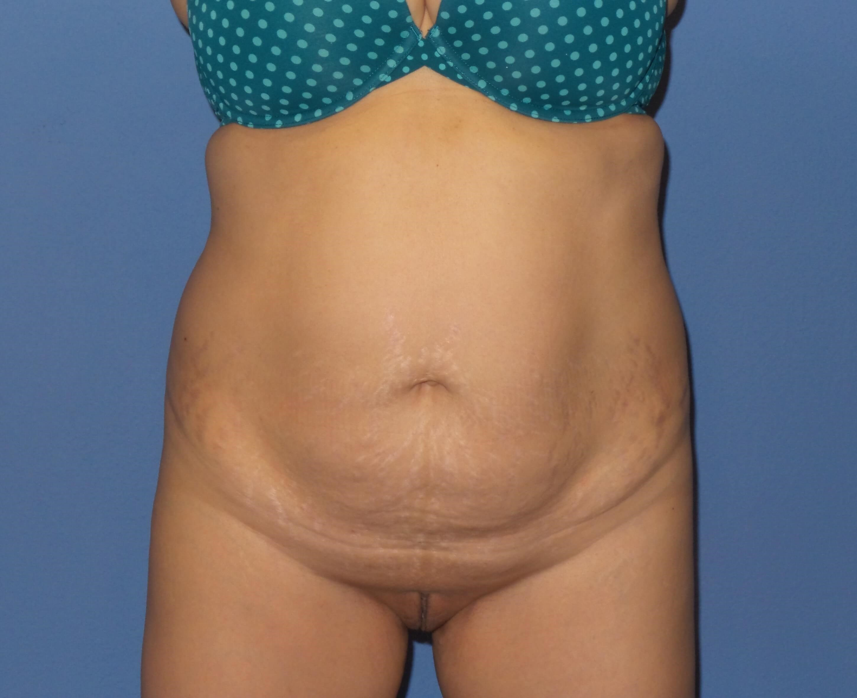 Tummy tuck front results Before