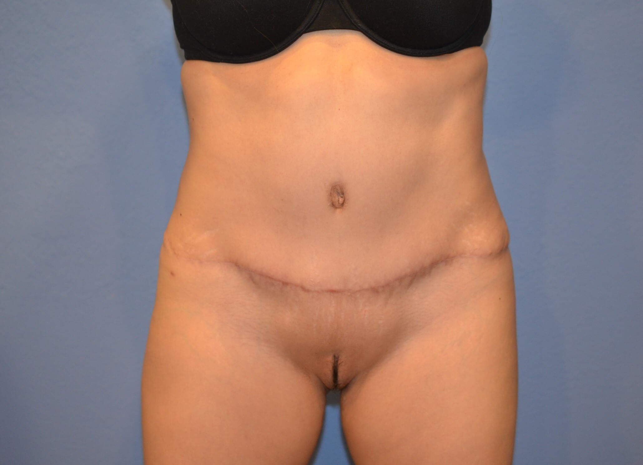 Tummy tuck front results After