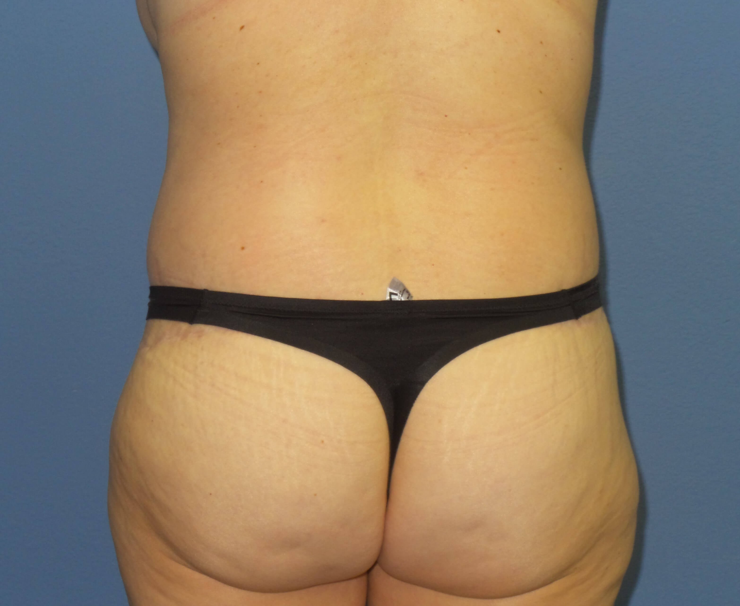 Body Lift results After