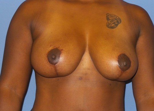 Breast lift results After