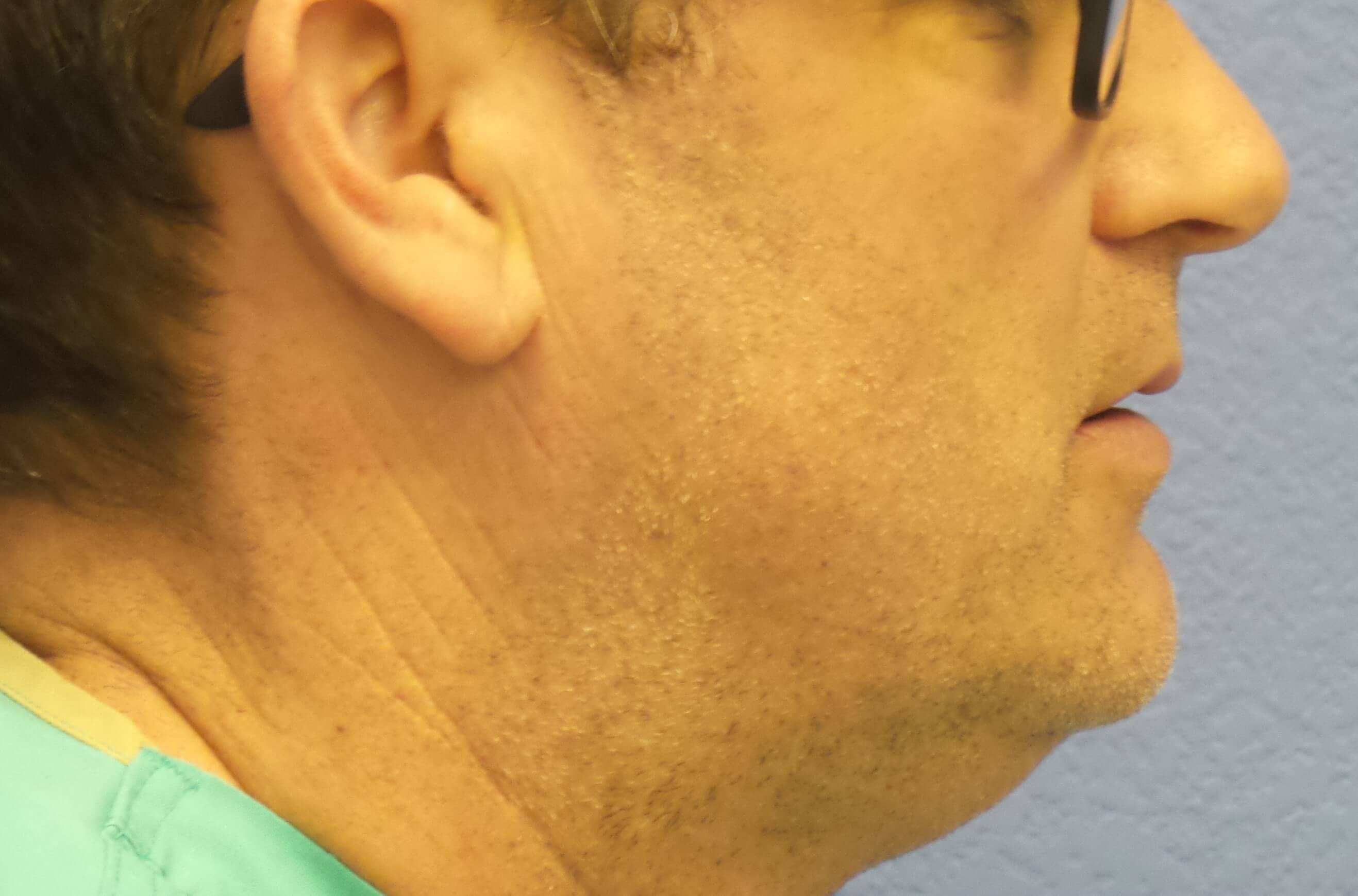 Kybella results Before