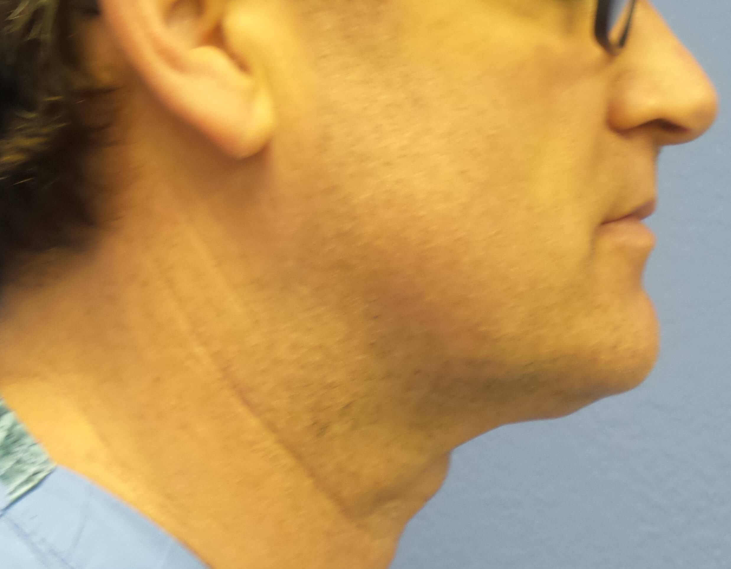 Kybella results After