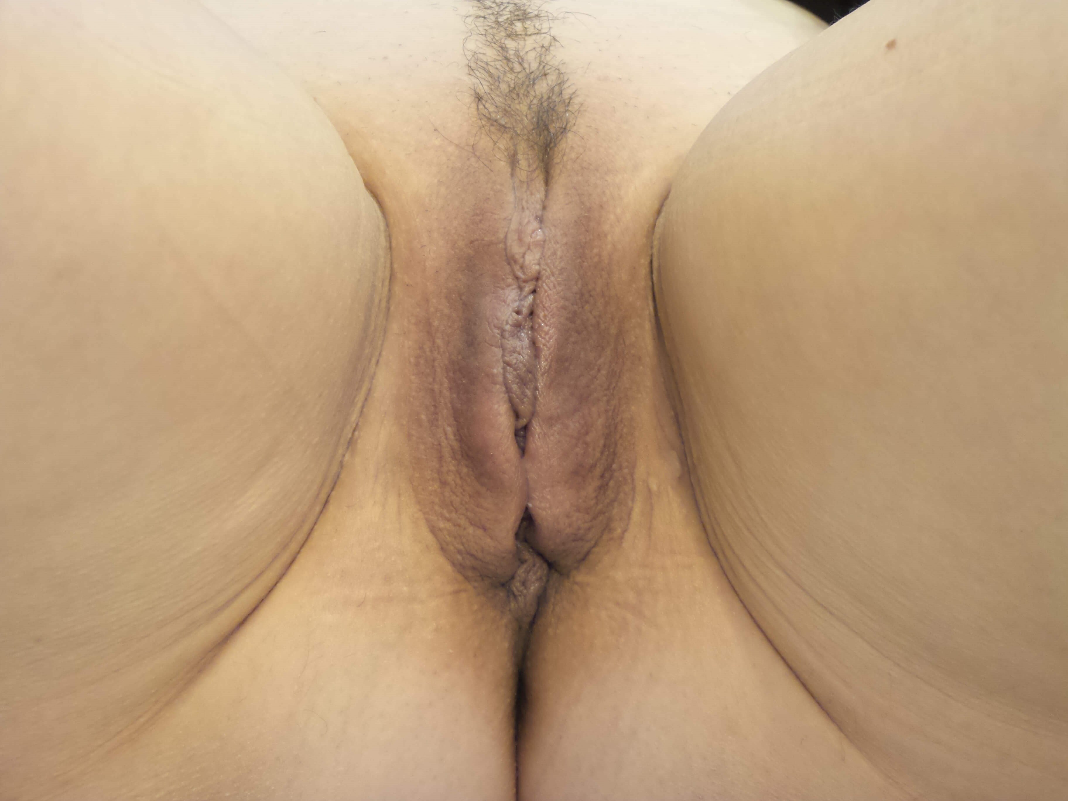 Labiaplasty results Before