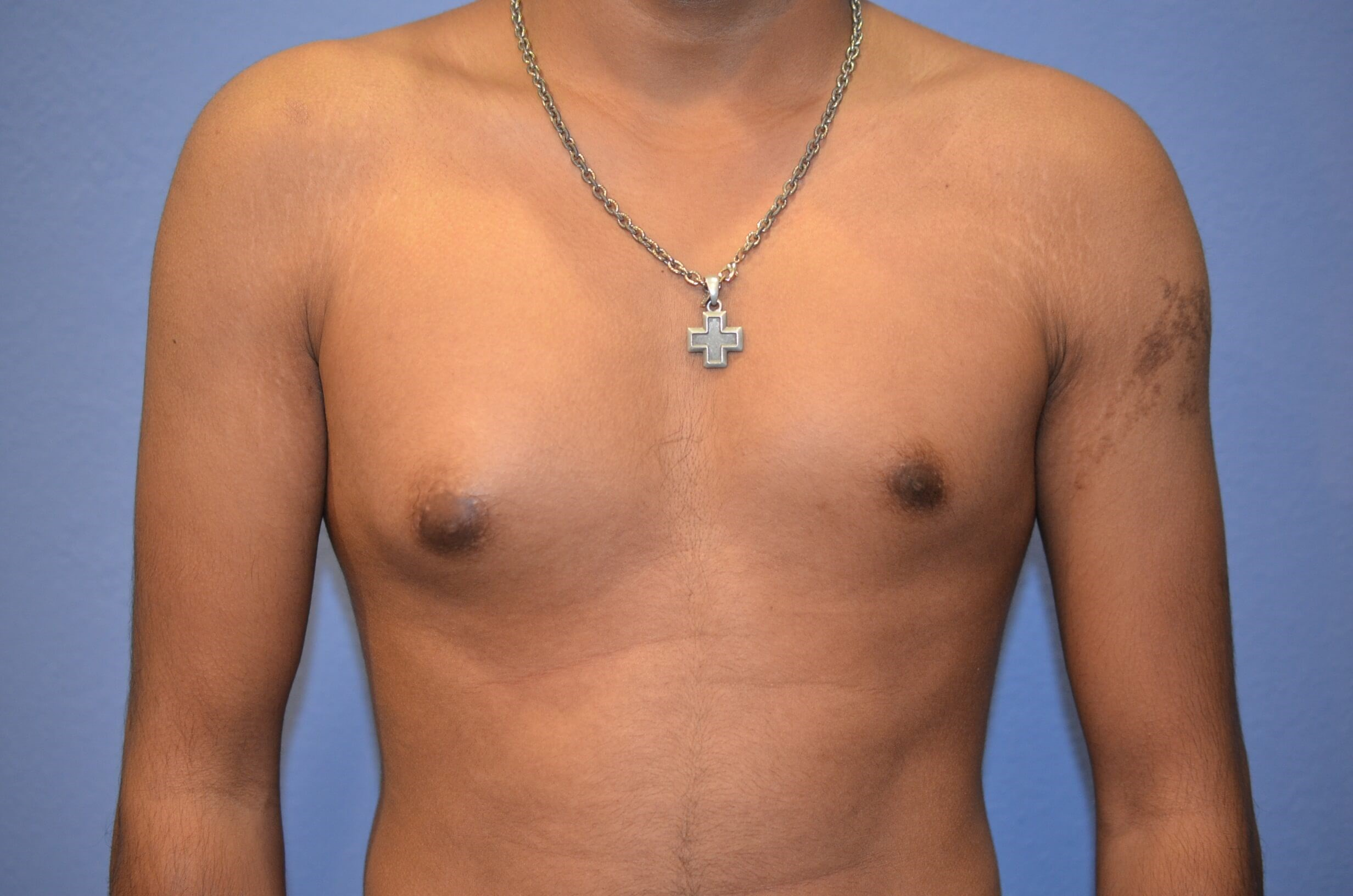 Gynecomastia treatment results Before