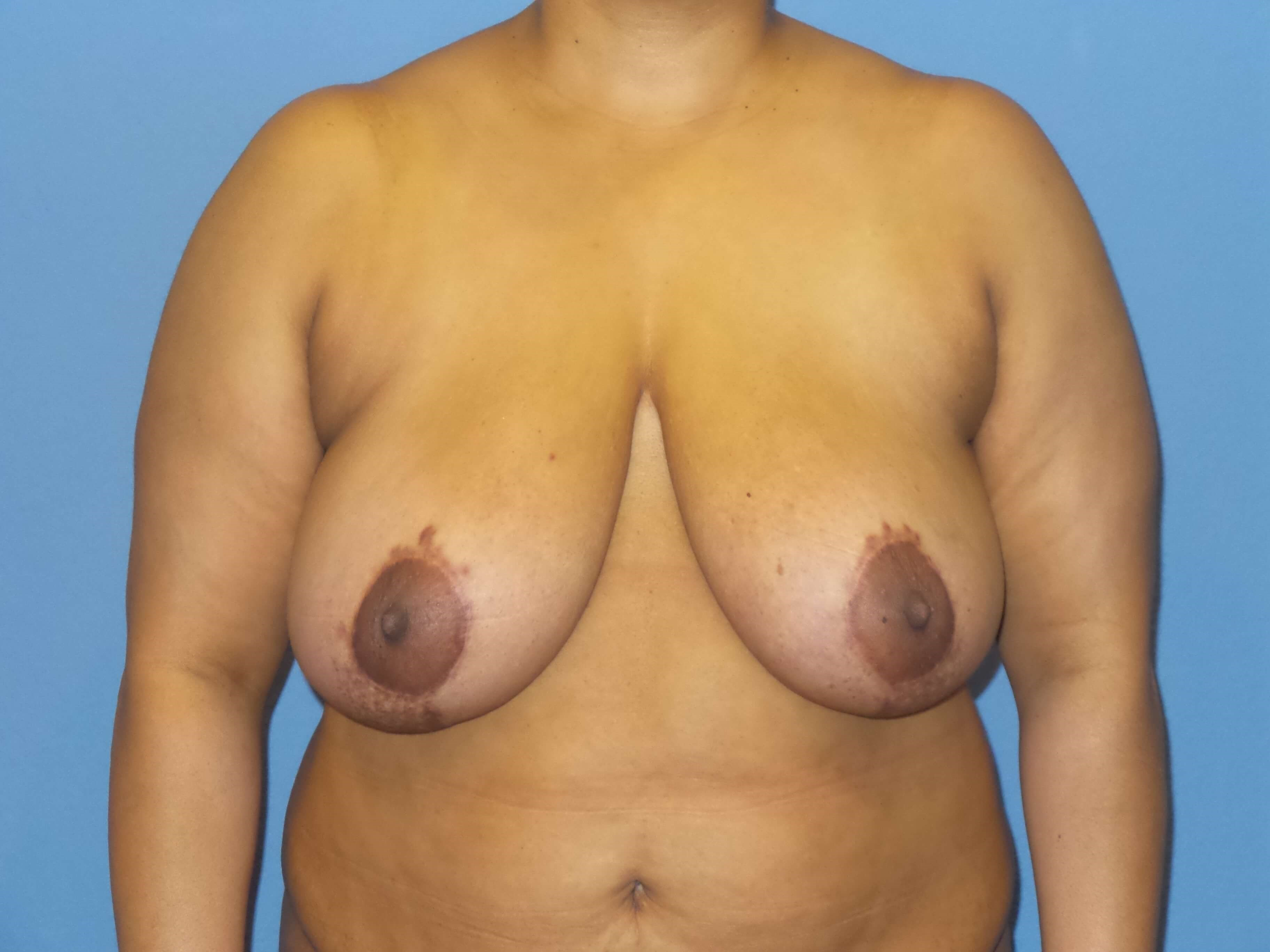 Breast reduction results Before