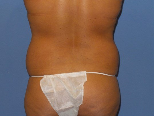 Liposuction flanks results Before
