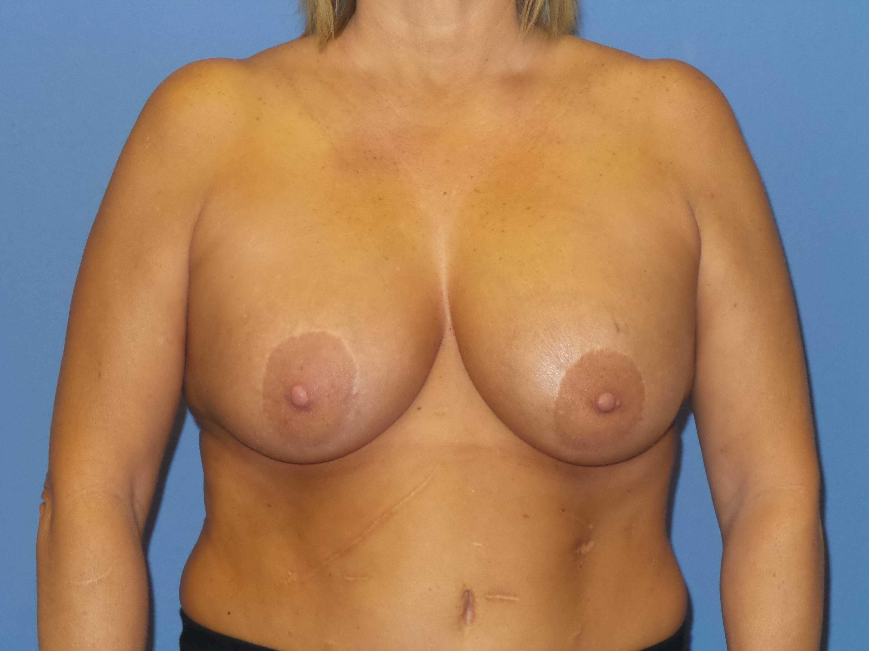 Breast implant exchange/lift Before