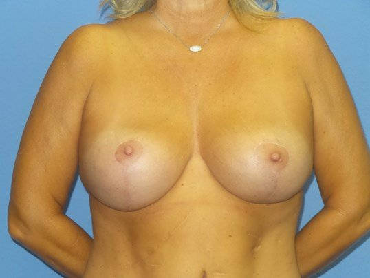 Breast implant exchange/lift After
