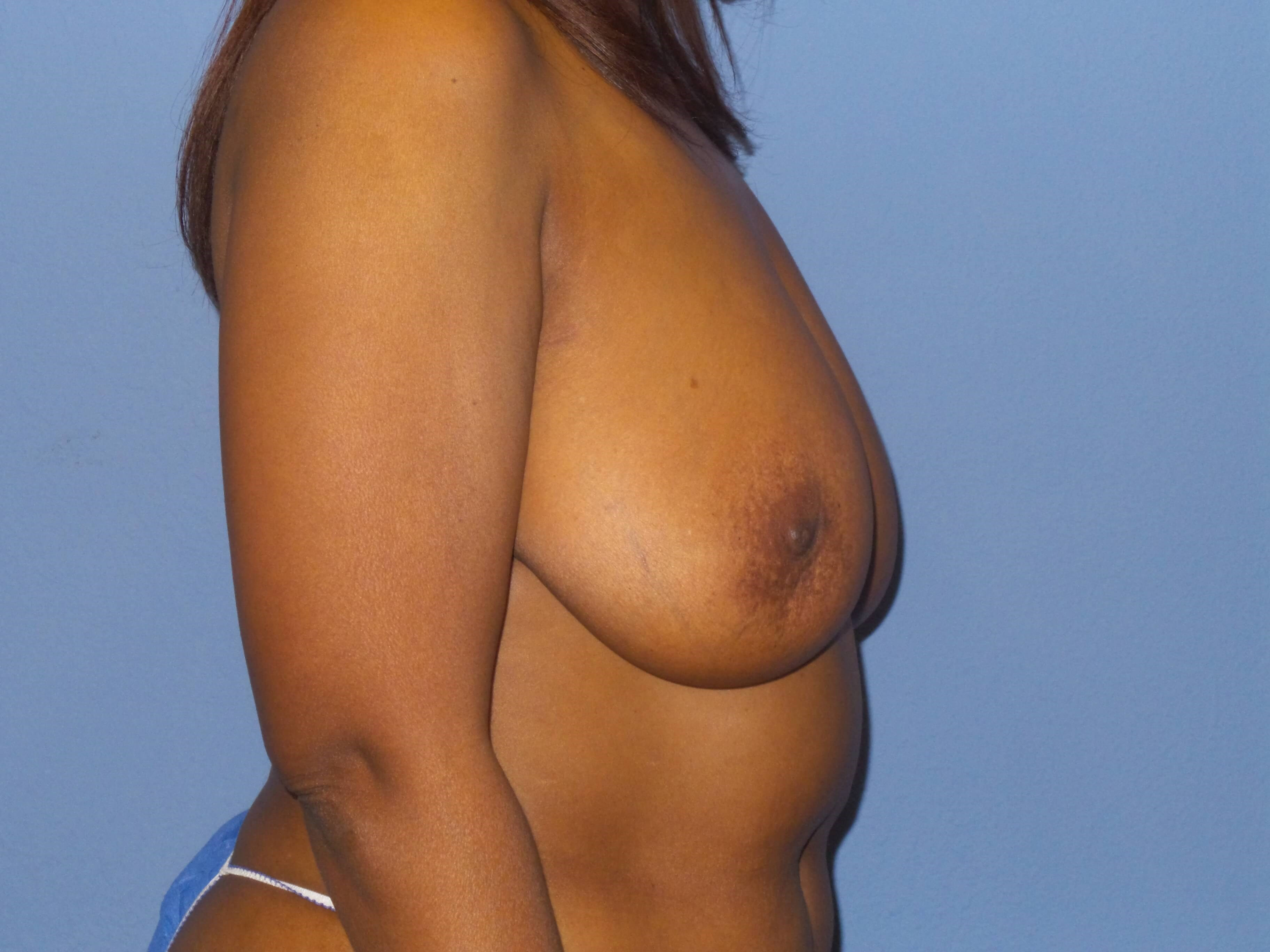 Breast lift results Before