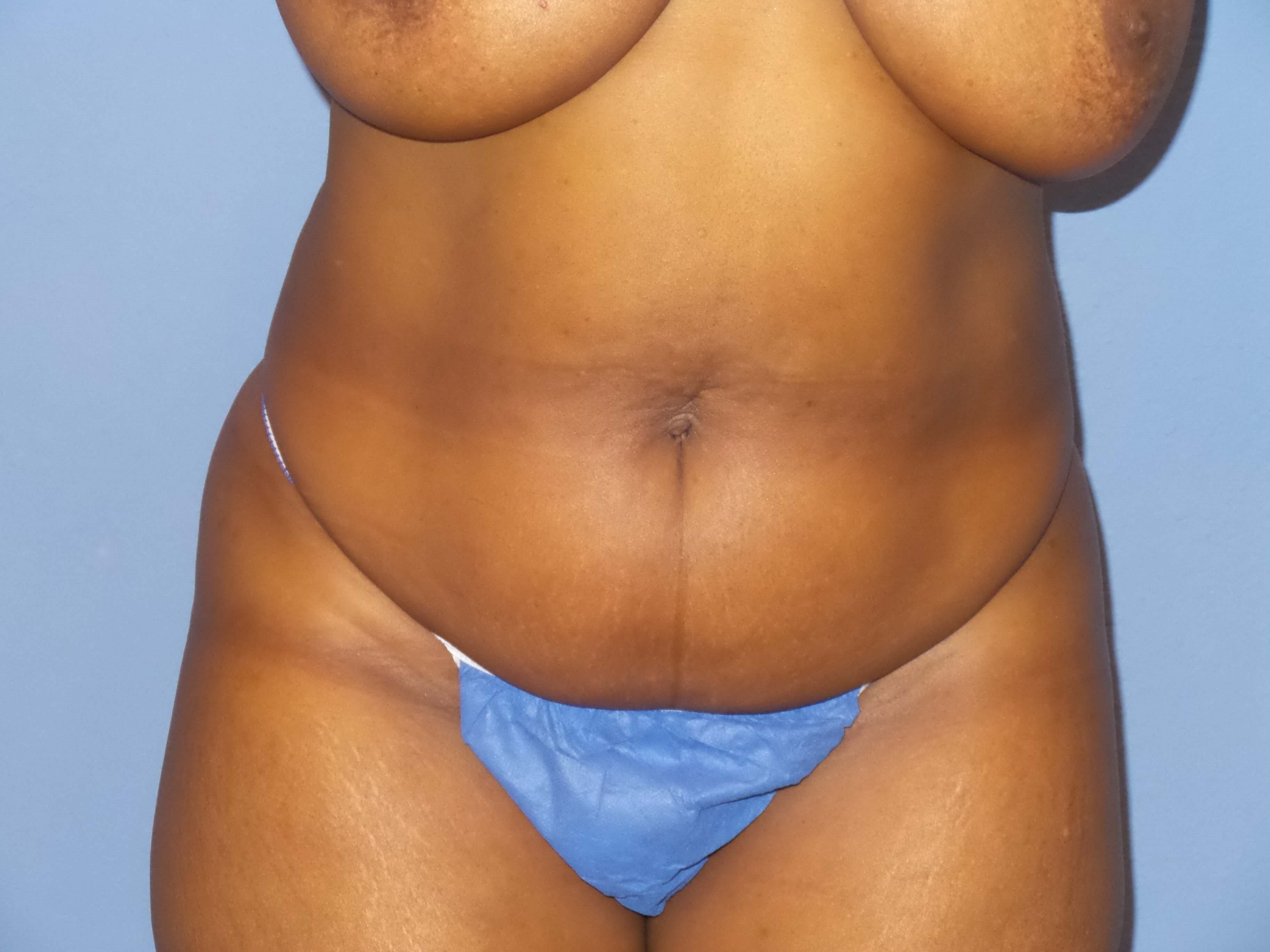Liposuction abdomen results Before