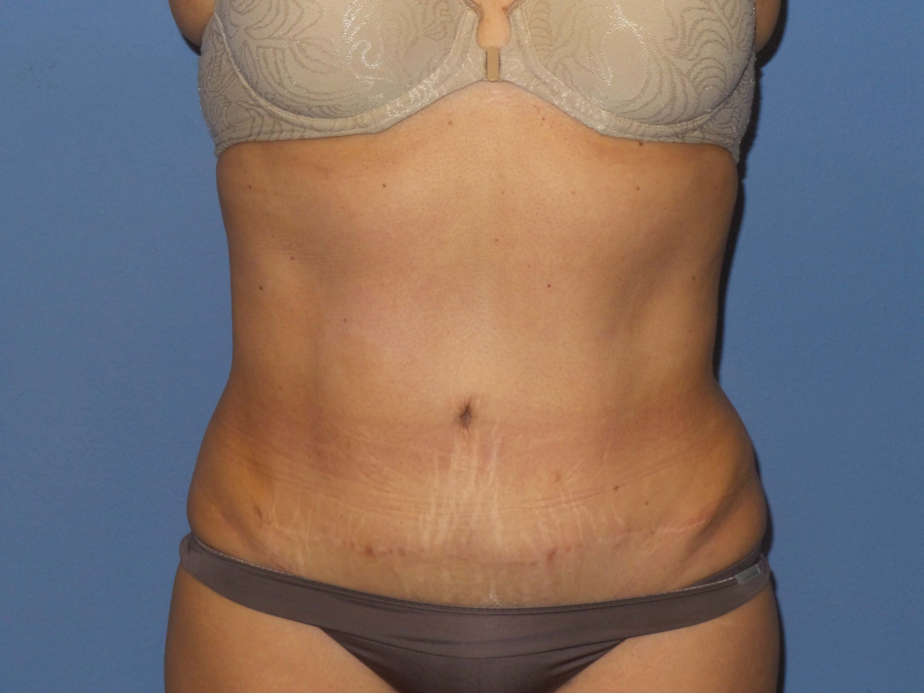 BodyTite results After