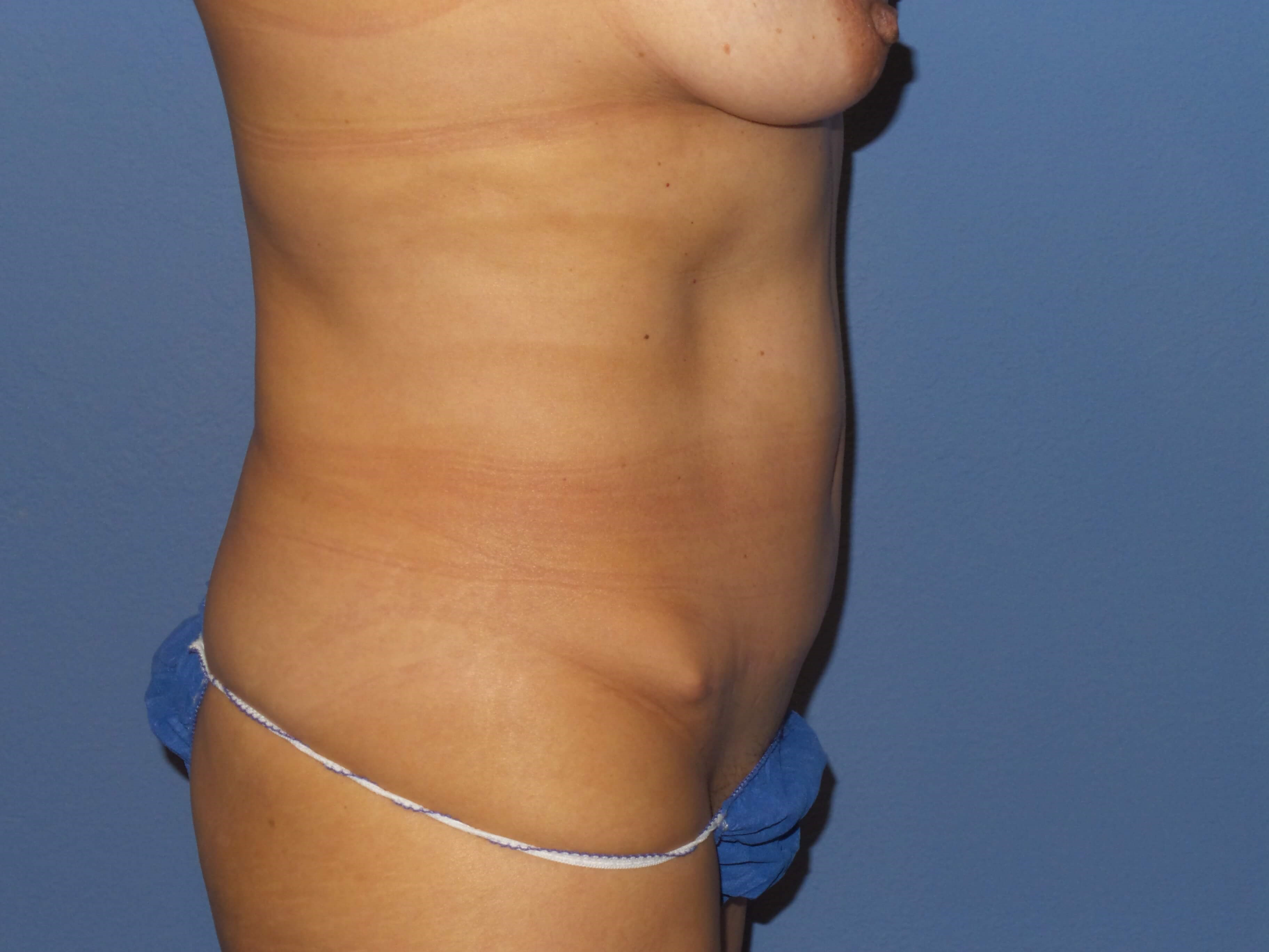 BodyTite results Before