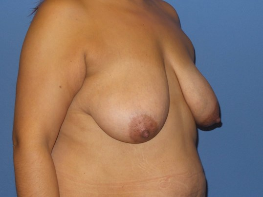 Breast lift with fat results Before