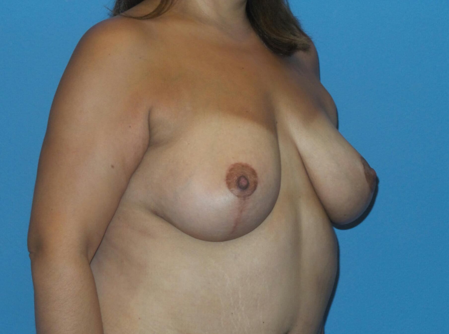 Breast lift with fat results After