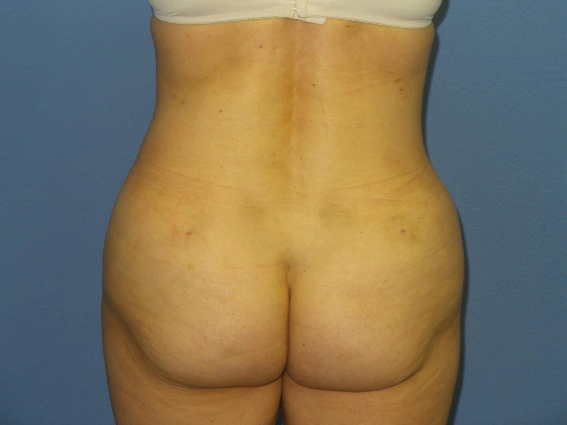 Liposuction flanks results After