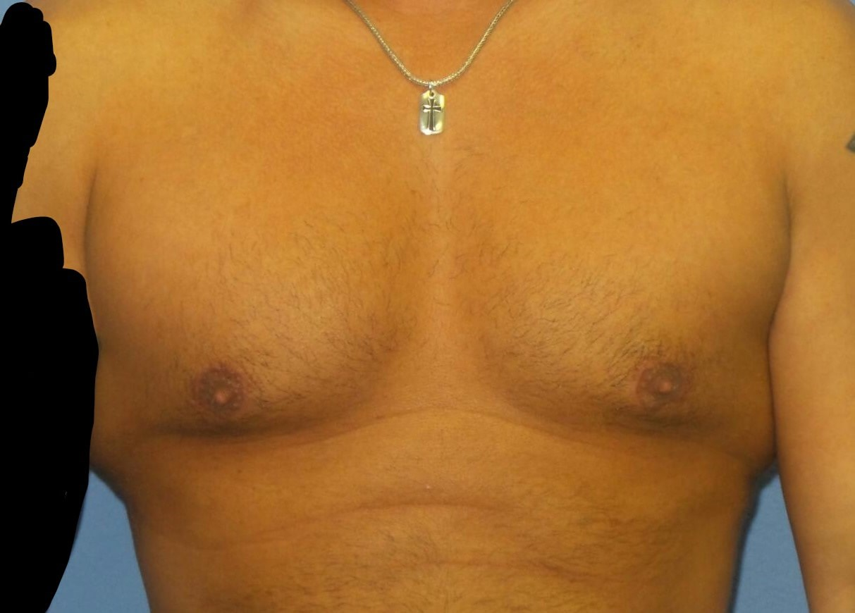 Gynecomastia treatment results After